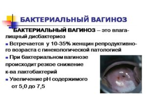 Бактериальный вагиноз у беременных