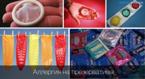Аллергия на презерватив у мужчин