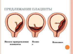 Плацента низко расположена что это значит при беременности