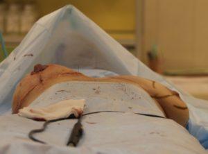 После родов грудь окаменела
