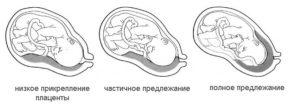 При беременности плацента низко расположена что это значит