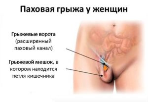 Болит при беременности пах