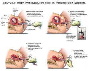Осложнения после аборта вакуумного