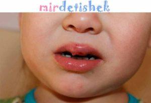 Ребенок разбил губу изнутри зубами