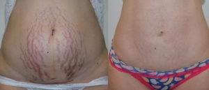 Как убрать растянутую кожу на животе после родов