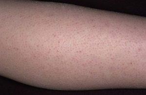 После родов кожа гусиная