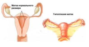 После родов маленькая матка