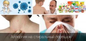 Как лечить аллергию на бытовую химию