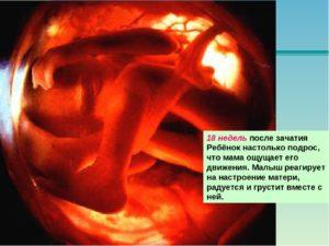 18 недель замершая беременность