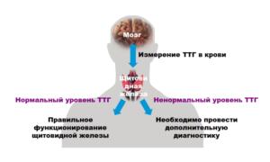 Повышенный гормон ттг у женщин причины и последствия