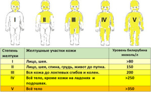 Что значит желтуха у новорожденных
