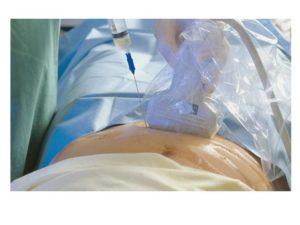 Биопсия беременных что это такое
