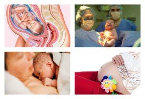 Схватки на 32 неделе беременности что делать
