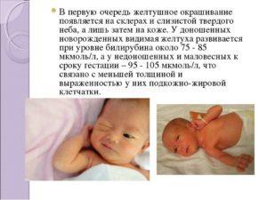 Желтуха у новорожденных сколько длится
