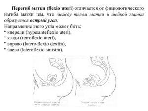 Положение матки после зачатия