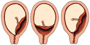 Плацента по задней стенке низко что это значит