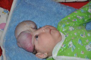 Почему у новорожденных большая голова