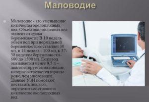 Маловодие при 37 недель беременности