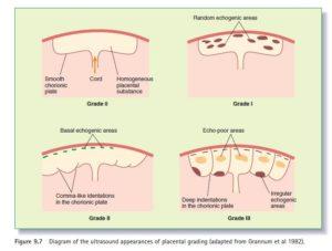Степени старения плаценты по неделям