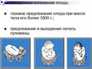 Тазовое предлежание плода на 32 неделе беременности форум