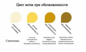 Цвет моча у беременных