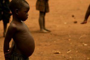 Худой ребенок и большой живот
