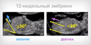 Можно узнать пол ребенка на 12 неделе беременности