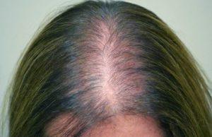Из за какого гормона выпадают волосы у женщин
