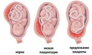Когда поднимается плацента при беременности