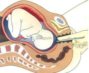 Прокол матки при беременности