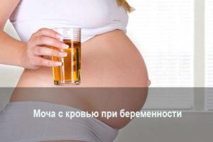 Кровь в моче при беременности на ранних сроках