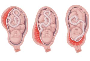 20 неделя низкая плацентация