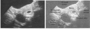Яичники увеличиваются при беременности