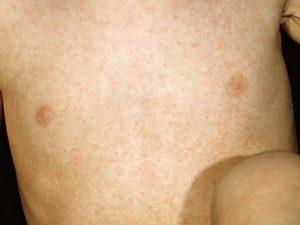 Сыпь у ребенка после температуры розеола
