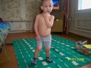 Большой живот у ребенка годовалого