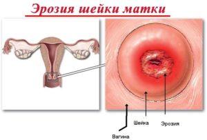 Эрозия матки во время беременности