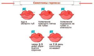 Герпес на носу при беременности на ранних сроках