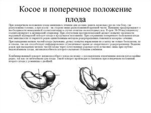Поперечное положение плода упражнения