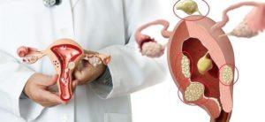 Миома в менопаузе лечение