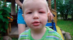 Оса укусила ребенка в шею