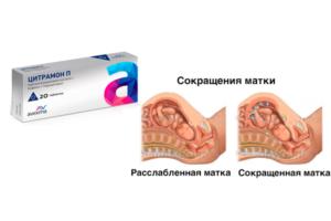 Тонус матки при беременности из за запора