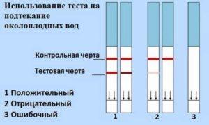 Признаки подтекания околоплодных вод в третьем триместре