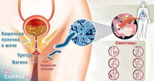 Чем опасна кишечная палочка при беременности в моче