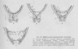 Раскрытие шейки матки преждевременное