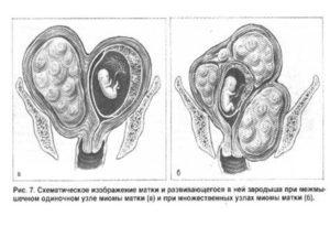 Матка маленькая при беременности