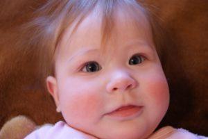 Почему щечки красные у ребенка