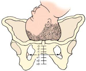 38 недель болит лобковая кость