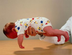 У ребенка пониженный тонус мышц