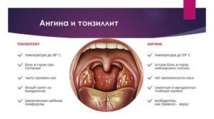 38 неделя беременности болит горло чем лечить