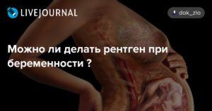 Можно ли рентген беременным